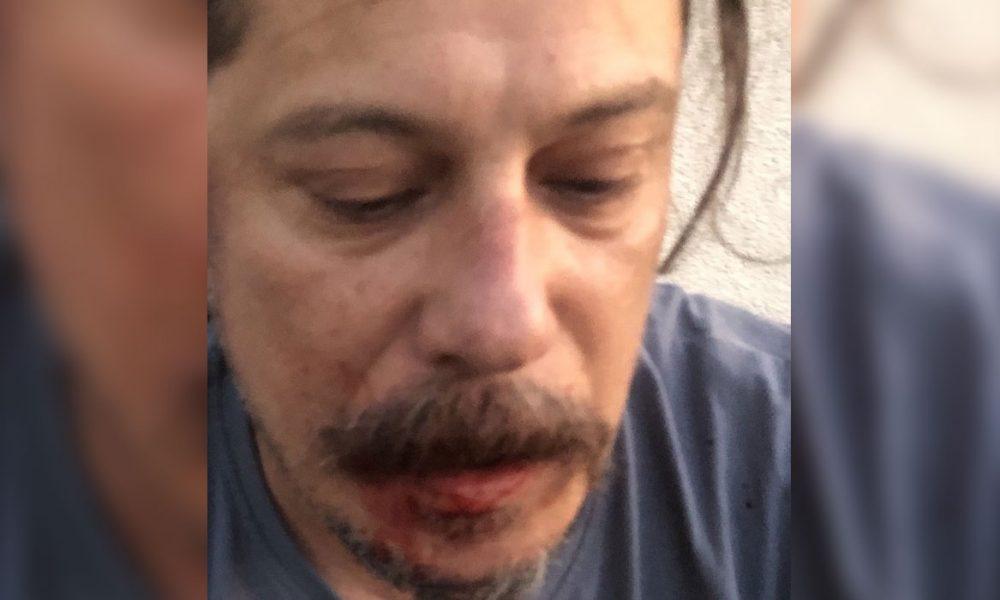 """Berlin'de evinde bıçaklı saldırıya uğradı: Gazeteci Erk Acarer """"Saldırganları tanıyorum"""" dedi"""